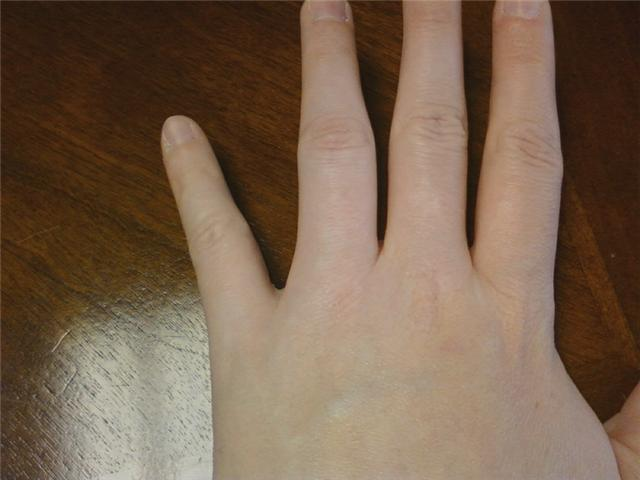 Why is my thumb swollen? Zocdoc Answers