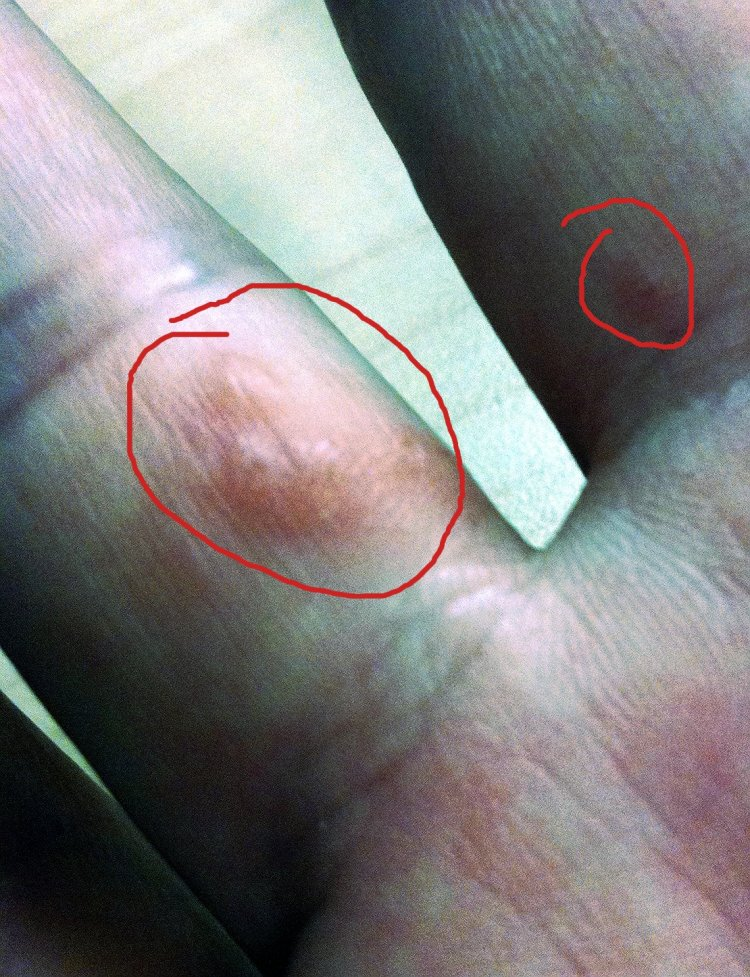 Small itchy bumps on hands? - Drugs.com