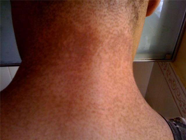 brown spots on neck