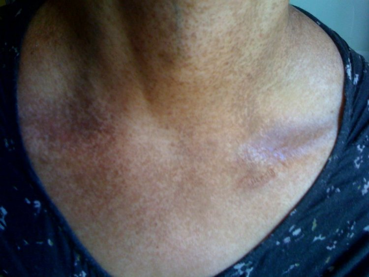 Dark spots on my neck and spreading