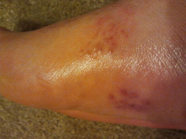 Bottom of foot bump has